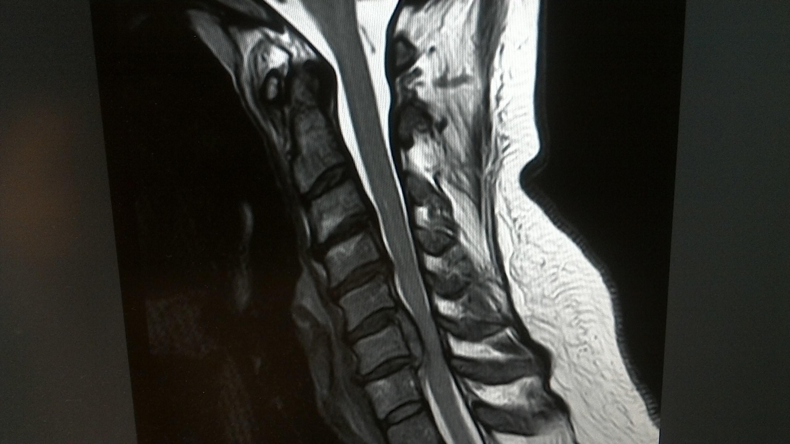 Rückenmark – A.T. Mameghani, MD